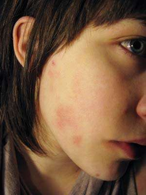 Could Gluten Be Ruining Your Skin Celiac Com